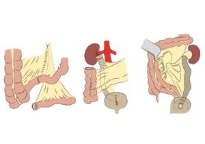Schematische Darstellung des Ureter-Ileum-Interponats, welches sowohl den rechten als auch den linken Harnleiter ersetzen kann