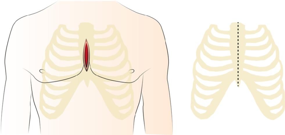 Mediane Sternotomie