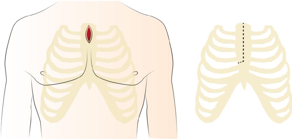 Abb. 2: Obere partielle Eröffnung des Brustbeins