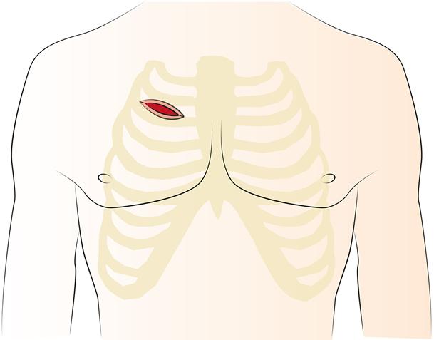 Abb. 3: Seitliche Eröffnung des Brustkorbs (RAT)