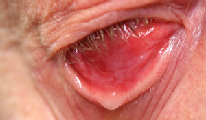 Dry Anophthalmic Socket Syndrome (DASS), Foto: Uniklinik Köln