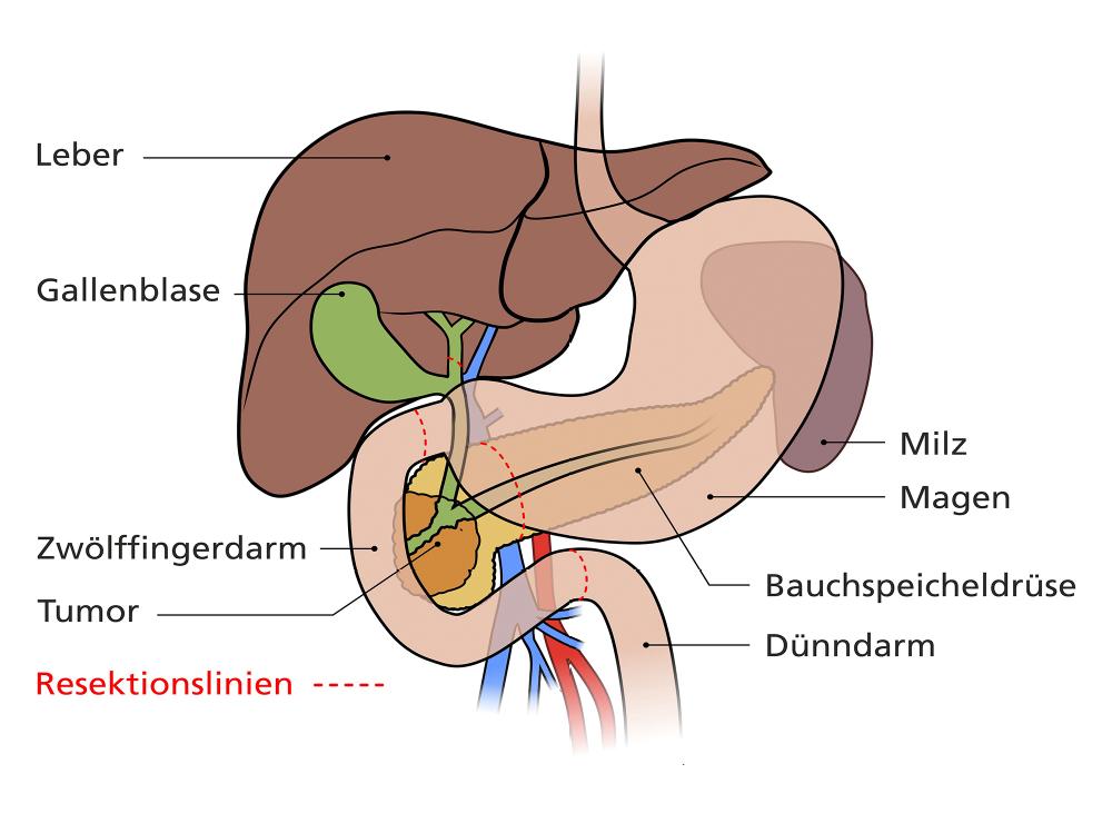 Operation am Bauchspeicheldrüsenkopf - Pankreas - Erkrankungen ...