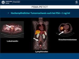 [68Ga]PSMA PET-CT beim Prostatakarzinom