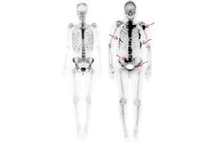 Skelettszintigraphie mit 99m-Tc-HDP