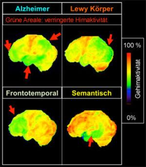 Abbildung 1 Neurodegeneration