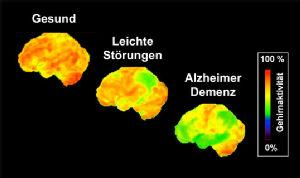 Abbildung 2 Neurodegeneration