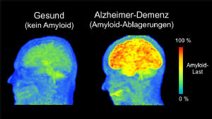 Abb: Amyloid-PET