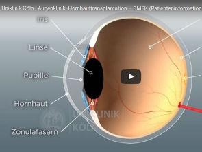 Video-gestützte Patientenaufklärung
