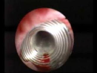 endoskopischer Blick auf den im Ureter liegenden Stent