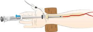 Endoskopische Gewinnung Arteria radialis