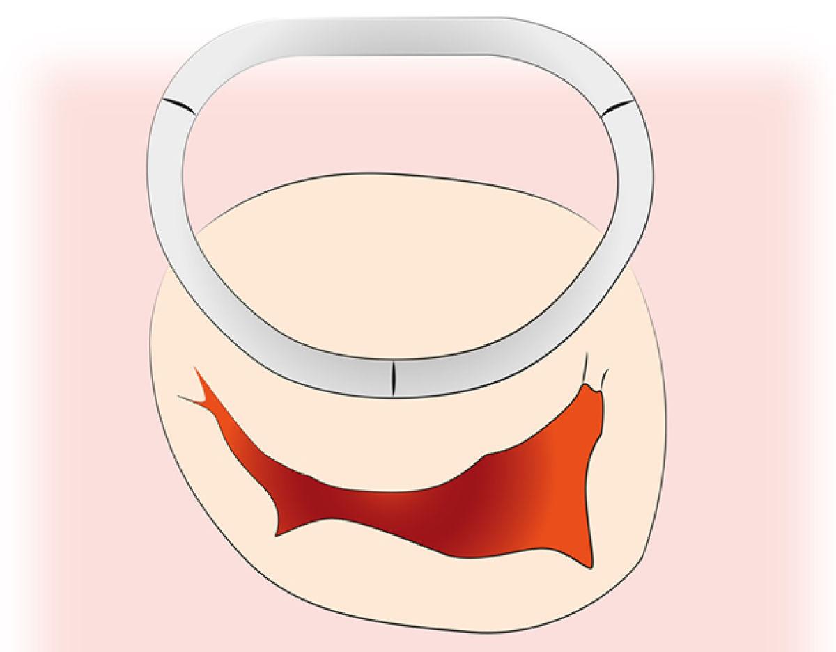 Anuloplastie-Ring