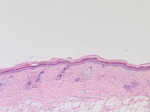 Histologische Färbung gesunder Maushaut, Bild: Baki Akgül
