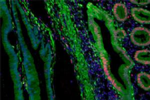 """Verlust des Reparaturproteins """"MLH1"""" in Tumorgewebe eines Patienten mit erblichem Darmkrebs (HNPCC)."""
