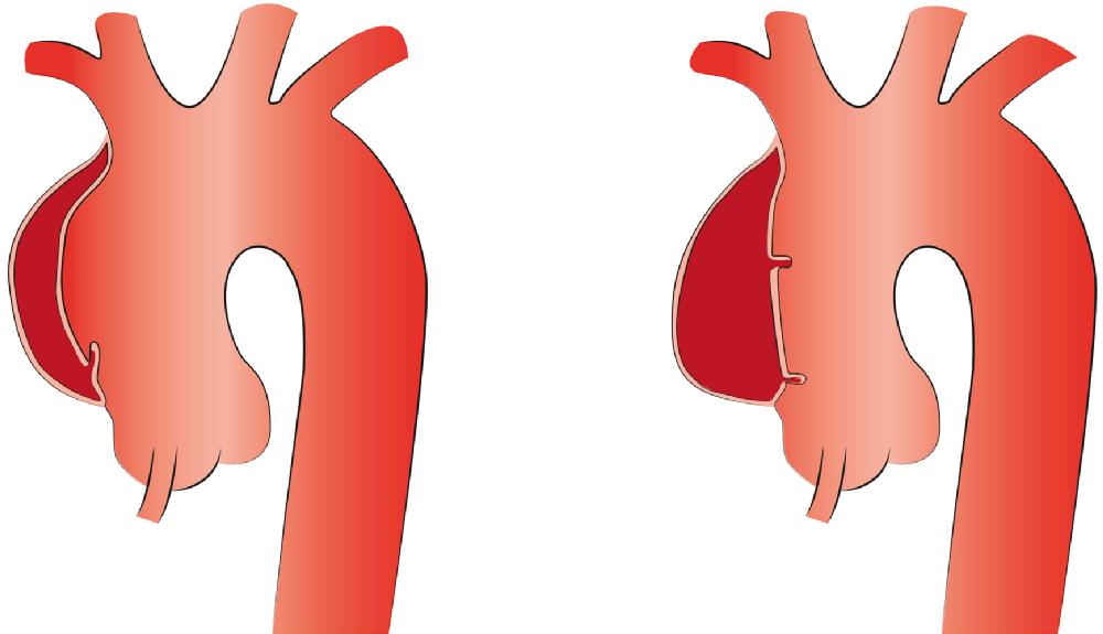 Aortenchirurgie - Erkrankungen & Therapien | Herzchirurgie Uniklinik ...