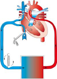 Herz-Lungen-Maschine