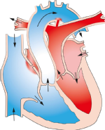 Abb. 2 Transpositionen der großen Arterie
