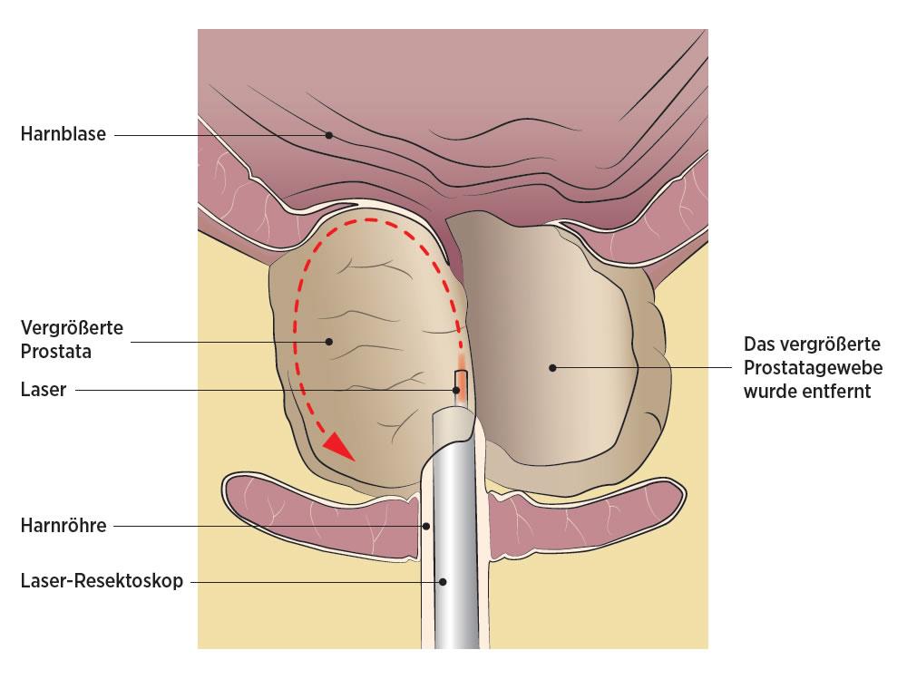 holep prostata laser