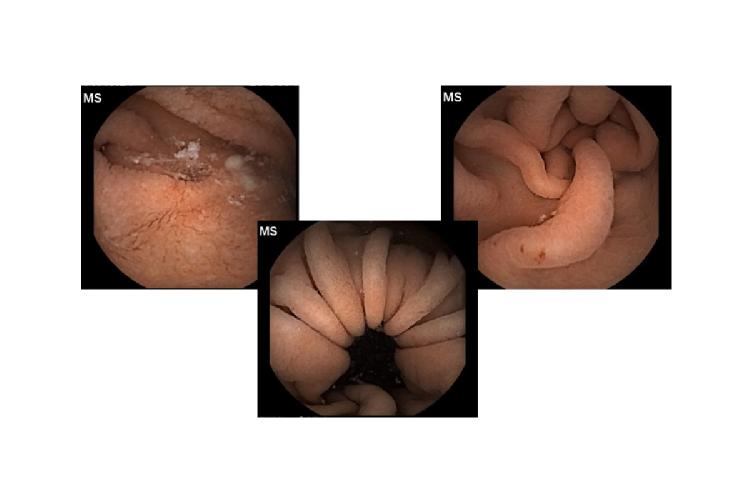 Dünndarmbilder aus einer Kapselendoskopie / Studie Maschine Learning. Quelle: Uniklinik Köln