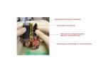 Stent mit Vakuumtherapie an einem Operationspräparat (Ösophagogastraler Übergang nach Ösophagektomie / Studie VACStent®) Quelle: Uniklinik Köln